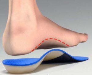کفی طبی ساخته شده با فوت اسکنر سه بعدی