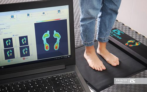 تست استاتیک اسکن پا | اسکنر فشار کف پا , فوت اسکنر , فوت پرشر