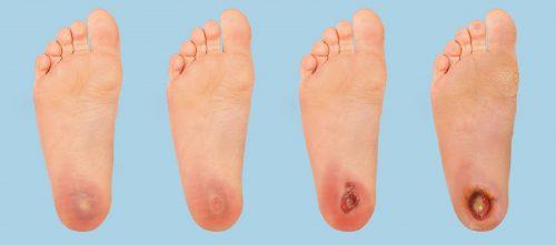 زخم پای دیابتی - اسکنر فشار کف پا , فوت اسکنر , فوت پرشر